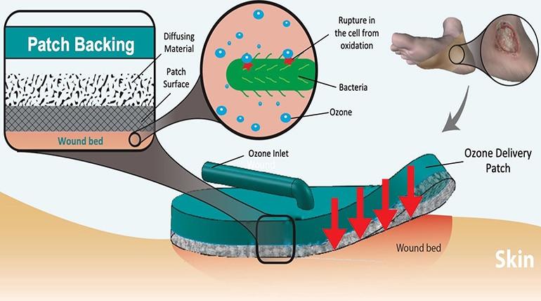 جزئیات طراحی ازون تراپی همراه +نرم افزار هموفیلی درمان دکتر