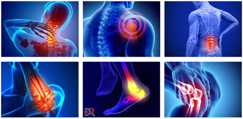 پوشش دهی تمام نقاط بدن بیمار با نرم افزار جامع فیزیوتراپی درمان دکتر